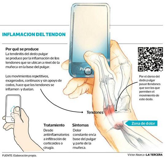 Conversando con el Dr. Quirantes sobre los dedos pulgares y los teléfonos celulares