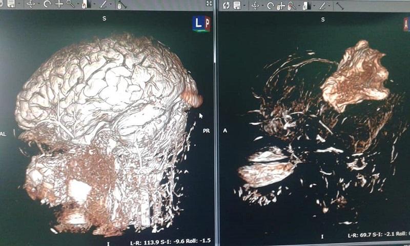 Novedoso proceder: Mapeo cerebral del lenguaje en paciente despierto