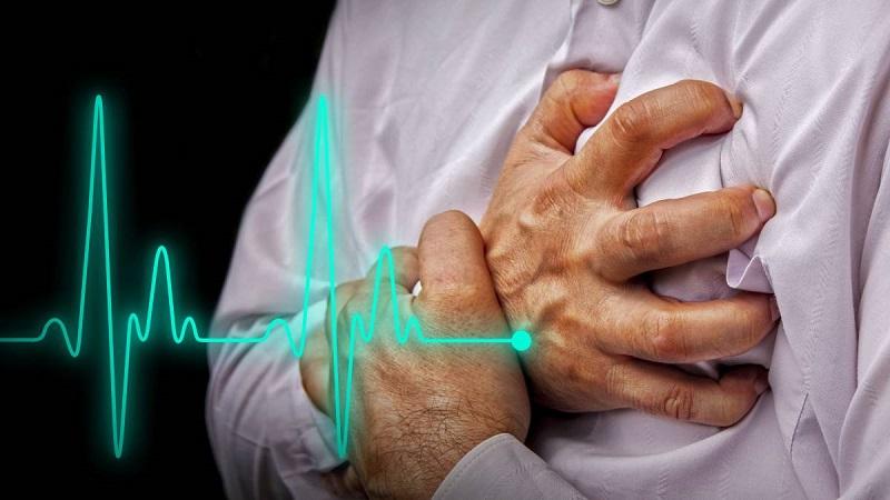 Reduce hospital avileño letalidad por infarto agudo del miocardio